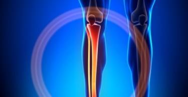Shin Splints: Schmerzen im Schienbein